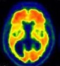 FDA Advisory Committee Recommends Approval of a New Brain Scan Test to Detect Alzheimers