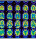 New Guidelines for Diagnosis of Alzheimer's
