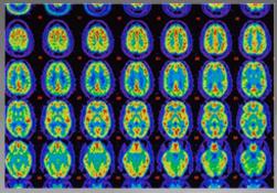 Mild Cognitive Impairment vs. Alzheimer's Earlier Diagnosis