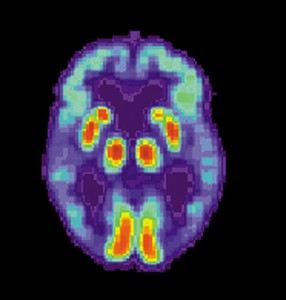 PET Scan of brain - Alzheimer's patient (image courtesy of Wkikpedia Commons)