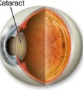 Resources on Cataracts Presented for Cataract Awareness Month - June 1-30