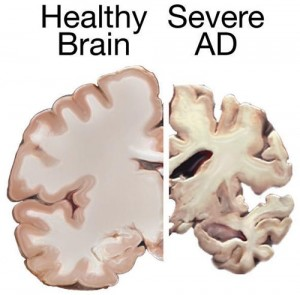 Alzheimer's Disease (AD) Brain (image courtesy of Wikipedia Commons)
