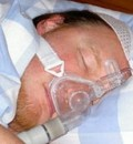 Treating Sleep Apnea Found to Reduce High Blood Pressure